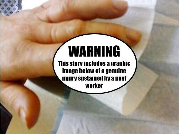 This image, uncensored further down this article, is of a genuine post worker's injury which the CWU shares to show the dangers posed by dogs to its members