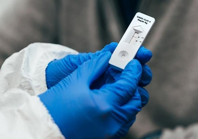 Lateral flow device test kits deliver results within half-an-hour