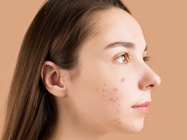 Clarins has looked at a combination of pollution, humidity, temperature, precipitation, and wind to identify the country's best and worst skin health environments.